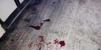 В Белове автобус раздавил мужчине руку