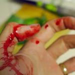 Кровь, руки в крови