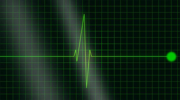 Пульс, сердце, кардиология, медицина