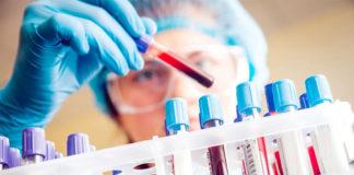 ВИЧ, СПИД, анализ, медицина, врач