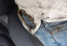 Вейп взорвался в кармане Новокузнечанина