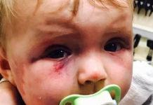 Беловчанка успокоила малолетнего сына ударами по голове