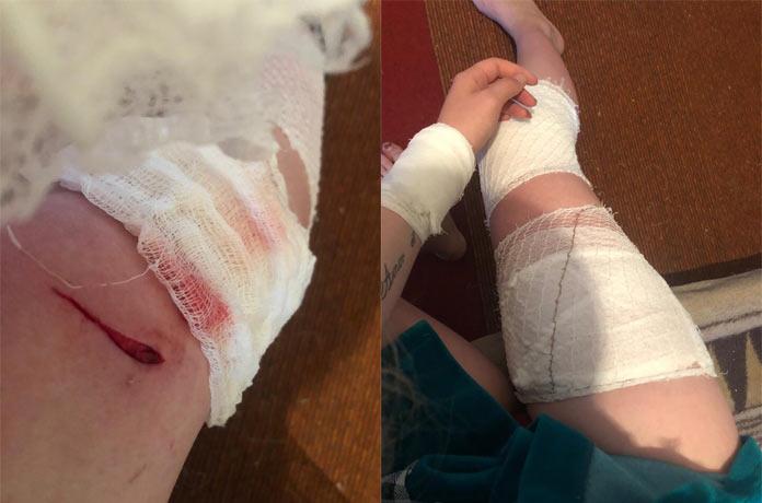 Бродячие собаки дважды напали на школьницу в Гурьевске