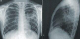 Рентген, снимок, позвоночник