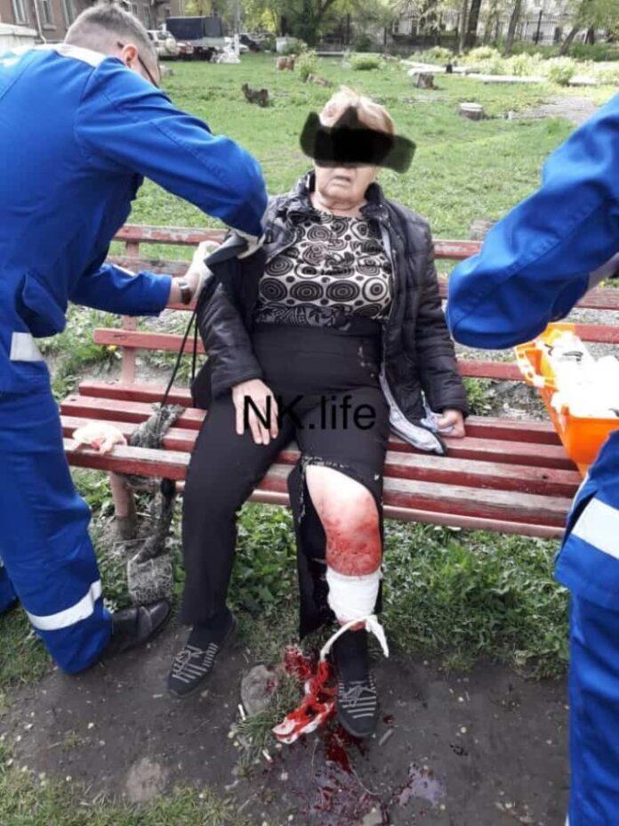 Бродячая собака тяжело ранила пожилую женщину в Новокузнецке
